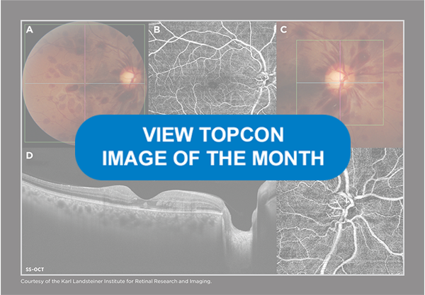 View Topcon Image of the Month